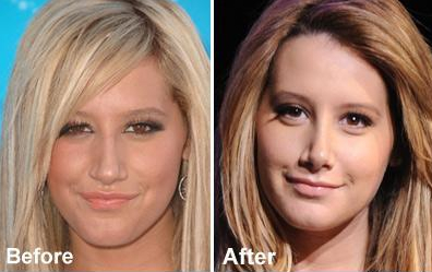 Ashley Tisdale nose comparison from TMZ.com (Dec. 17, 2007)